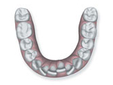 overcrowded teeth